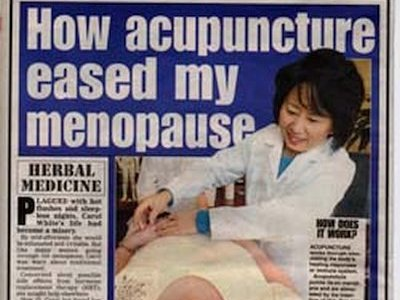 How acupuncture eased my menopause The Daily Echo dated Tuesday 1st February 2005